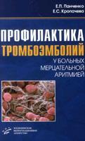 Профилактика тромбоэмболий у больных мерцательной аритмией