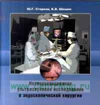 Интраоперационное ультразвуковое исследование в эндоскопической хирургии