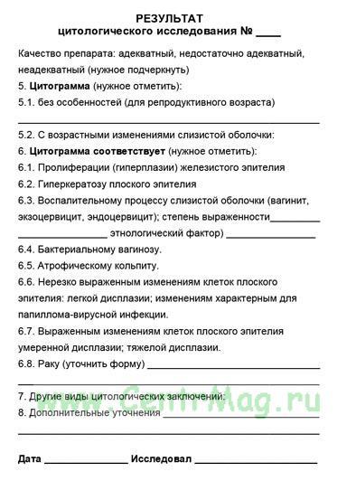 intim-foto-ulyanovsk
