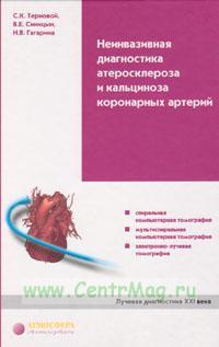 Неинвазивная диагностика атеросклероза и кальциноза коронарных артерий