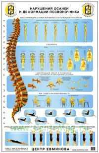 Плакат Нарушение осанки и деформации позвоночника