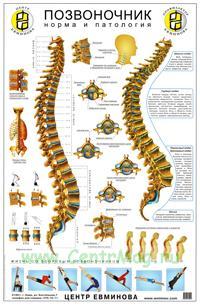 Плакат Позвоночник. Норма и патология