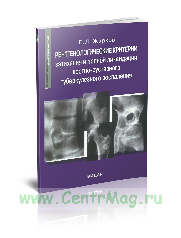 Рентгенологические критерии затихания и полной ликвидации костно-суставного туберкулезного воспаления