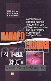 Лапароскопия при травме живота